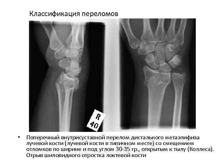 Классификация переломов • Поперечный внутрисуставной перелом дистального метаэпифиза лучевой кости (лучевой кости в типичном