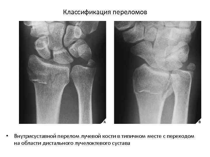 Классификация переломов • Внутрисуставной перелом лучевой кости в типичном месте с переходом на области