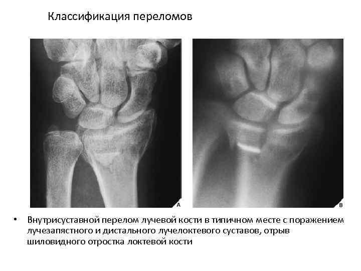 Классификация переломов • Внутрисуставной перелом лучевой кости в типичном месте с поражением лучезапястного и