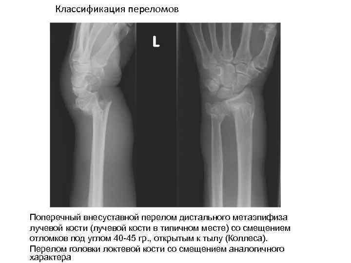 Классификация переломов Поперечный внесуставной перелом дистального метаэпифиза лучевой кости (лучевой кости в типичном месте)