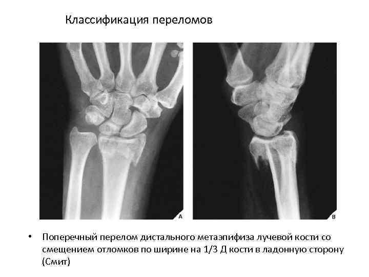 Классификация переломов • Поперечный перелом дистального метаэпифиза лучевой кости со смещением отломков по ширине