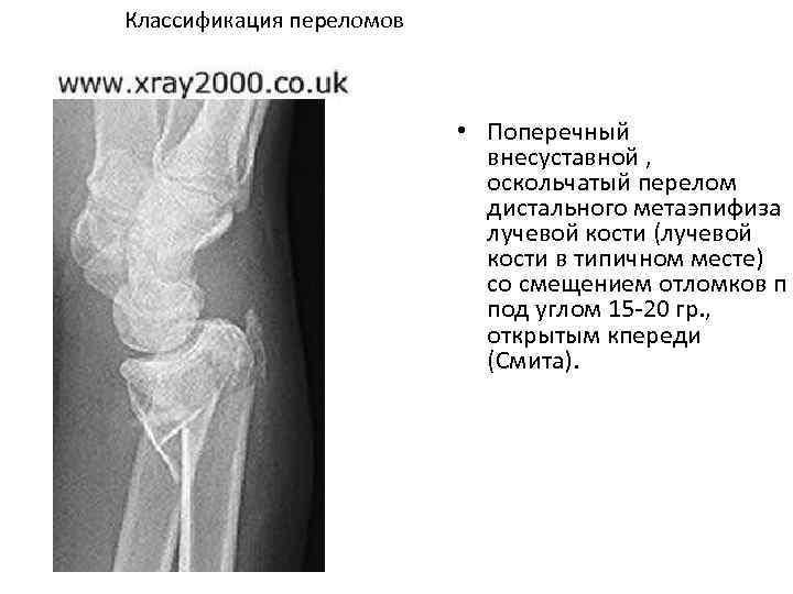 Классификация переломов • Поперечный внесуставной , оскольчатый перелом дистального метаэпифиза лучевой кости (лучевой кости