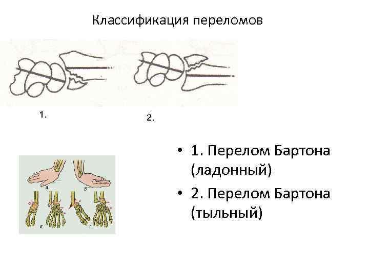 Классификация переломов 1. 2. • 1. Перелом Бартона (ладонный) • 2. Перелом Бартона (тыльный)