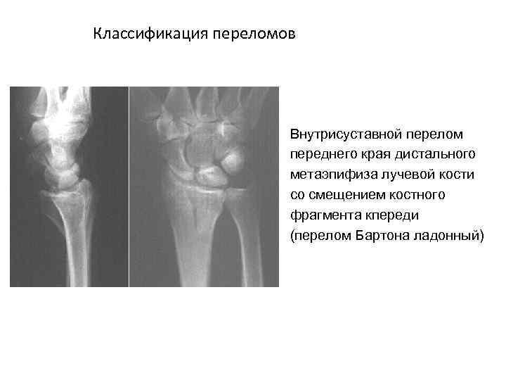 Классификация переломов Внутрисуставной перелом переднего края дистального метаэпифиза лучевой кости со смещением костного фрагмента
