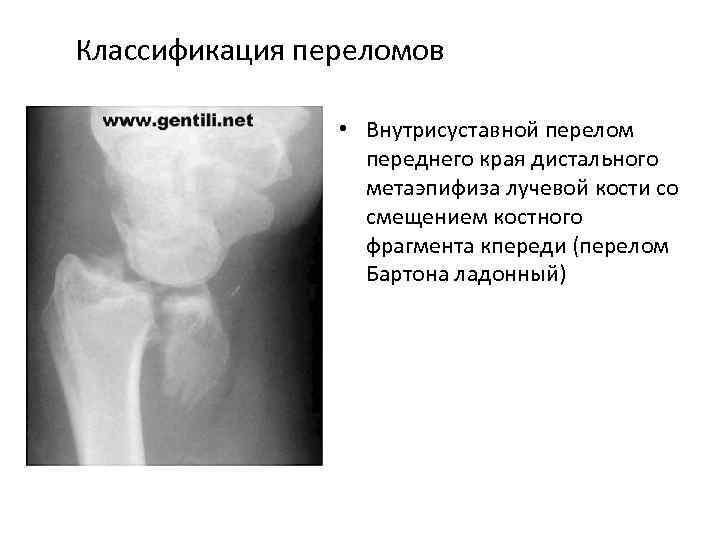 Классификация переломов • Внутрисуставной перелом переднего края дистального метаэпифиза лучевой кости со смещением костного