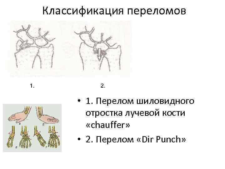 Классификация переломов 1. 2. • 1. Перелом шиловидного отростка лучевой кости «chauffer» • 2.