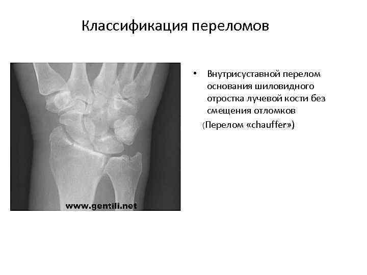 Классификация переломов • Внутрисуставной перелом основания шиловидного отростка лучевой кости без смещения отломков (Перелом