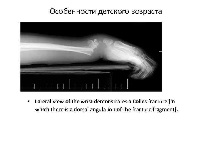 Особенности детского возраста • Lateral view of the wrist demonstrates a Colles fracture (in