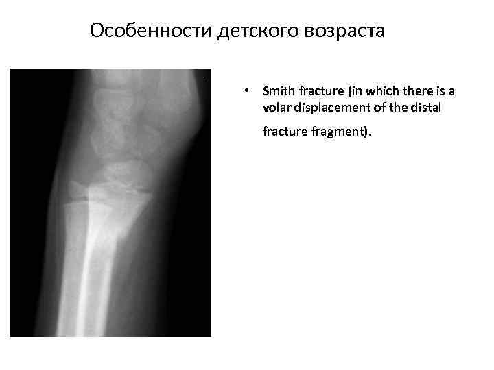 Особенности детского возраста • Smith fracture (in which there is a volar displacement of