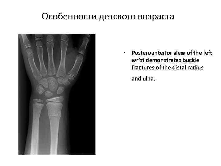 Особенности детского возраста • Posteroanterior view of the left wrist demonstrates buckle fractures of