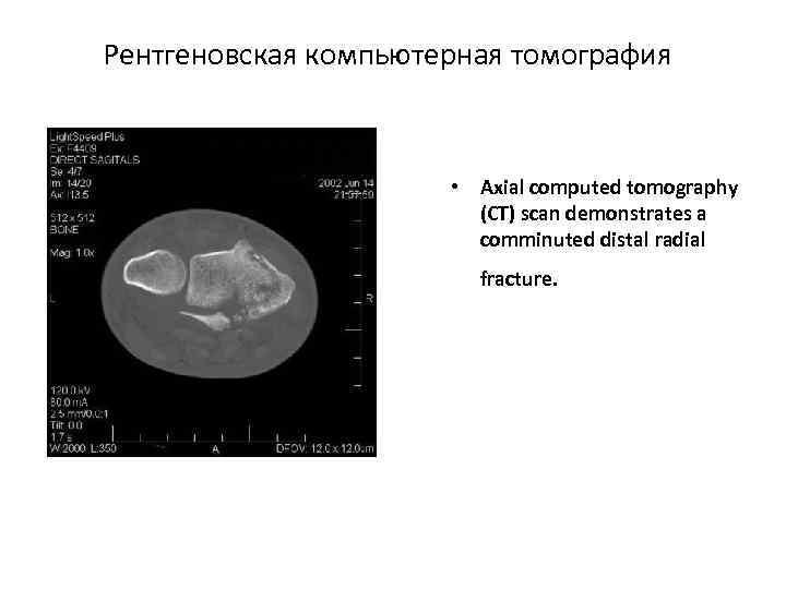 Рентгеновская компьютерная томография • Axial computed tomography (CT) scan demonstrates a comminuted distal radial
