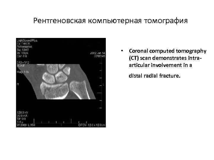 Рентгеновская компьютерная томография • Coronal computed tomography (CT) scan demonstrates intraarticular involvement in a