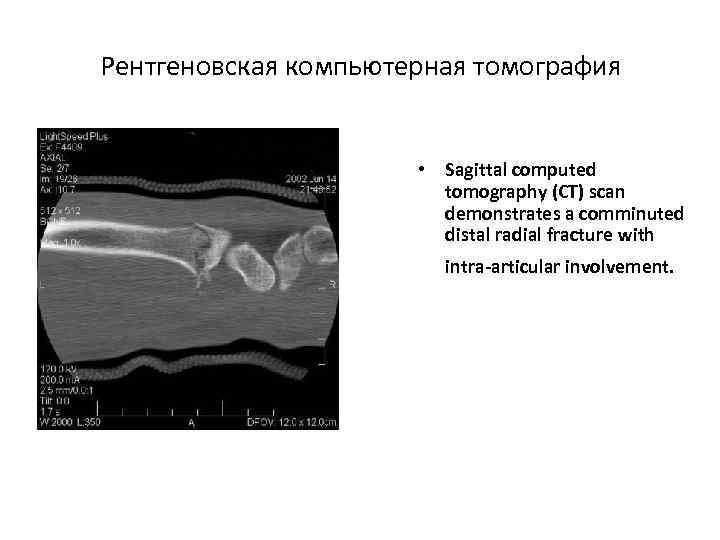 Рентгеновская компьютерная томография • Sagittal computed tomography (CT) scan demonstrates a comminuted distal radial