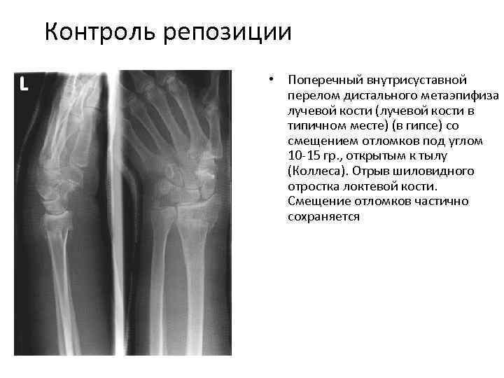 Контроль репозиции • Поперечный внутрисуставной перелом дистального метаэпифиза лучевой кости (лучевой кости в типичном