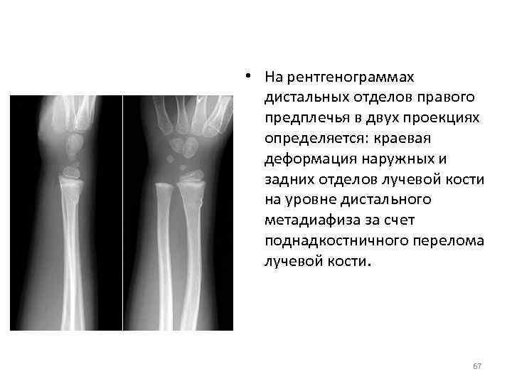 • На рентгенограммах дистальных отделов правого предплечья в двух проекциях определяется: краевая деформация