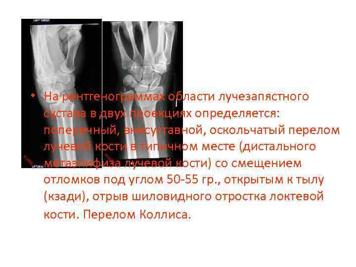 • На рентгенограммах области лучезапястного сустава в двух проекциях определяется: поперечный, внесуставной, оскольчатый