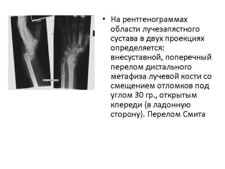• На рентгенограммах области лучезапястного сустава в двух проекциях определяется: внесуставной, поперечный перелом