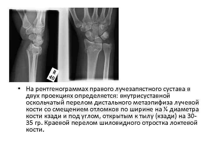 • На рентгенограммах правого лучезапястного сустава в двух проекциях определяется: внутрисуставной оскольчатый перелом