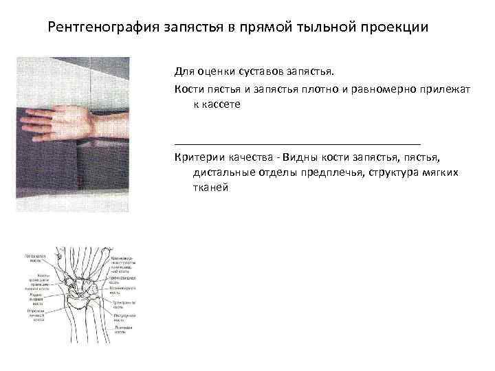 Рентгенография запястья в прямой тыльной проекции Для оценки суставов запястья. Кости пястья и запястья