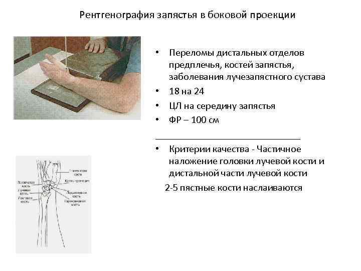 Рентгенография запястья в боковой проекции • Переломы дистальных отделов предплечья, костей запястья, заболевания лучезапястного