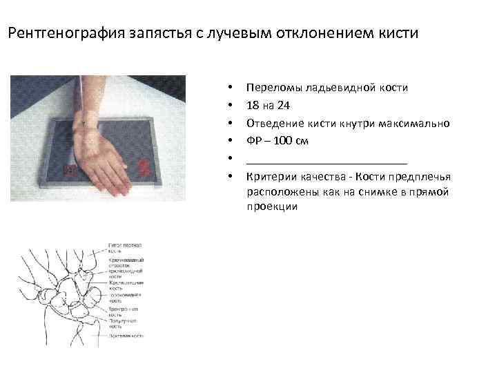 Рентгенография запястья с лучевым отклонением кисти • • • Переломы ладьевидной кости 18 на