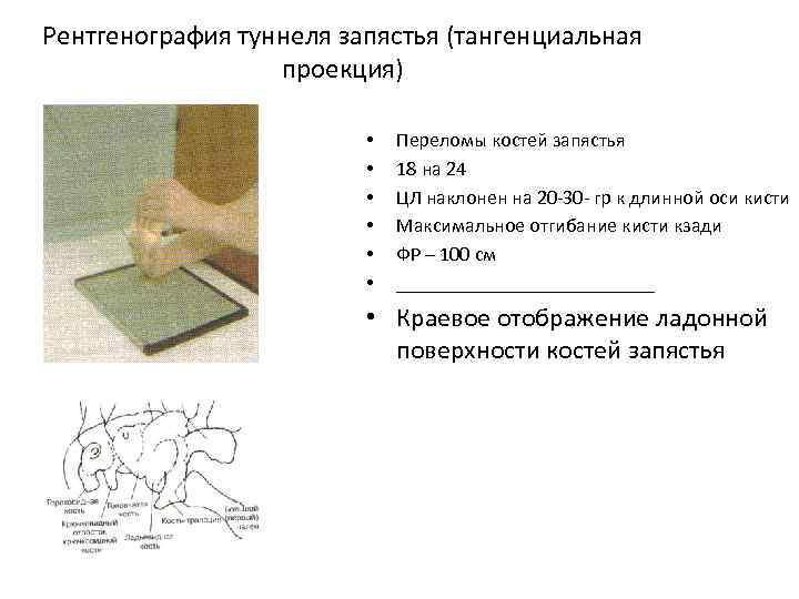 Рентгенография туннеля запястья (тангенциальная проекция) • • • Переломы костей запястья 18 на 24