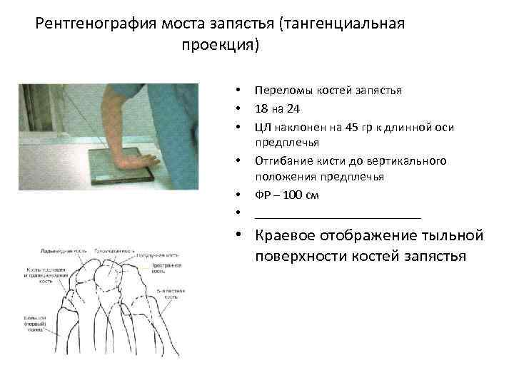 Рентгенография моста запястья (тангенциальная проекция) • • • Переломы костей запястья 18 на 24