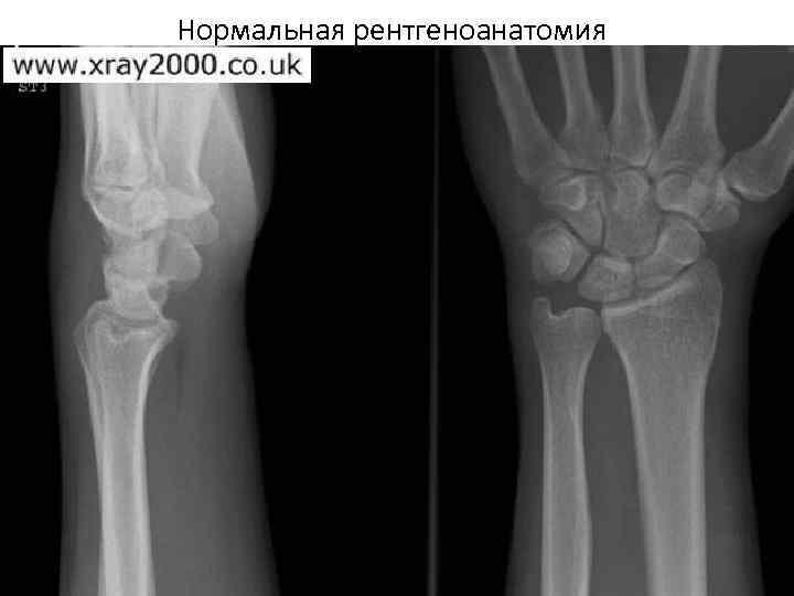 Нормальная рентгеноанатомия
