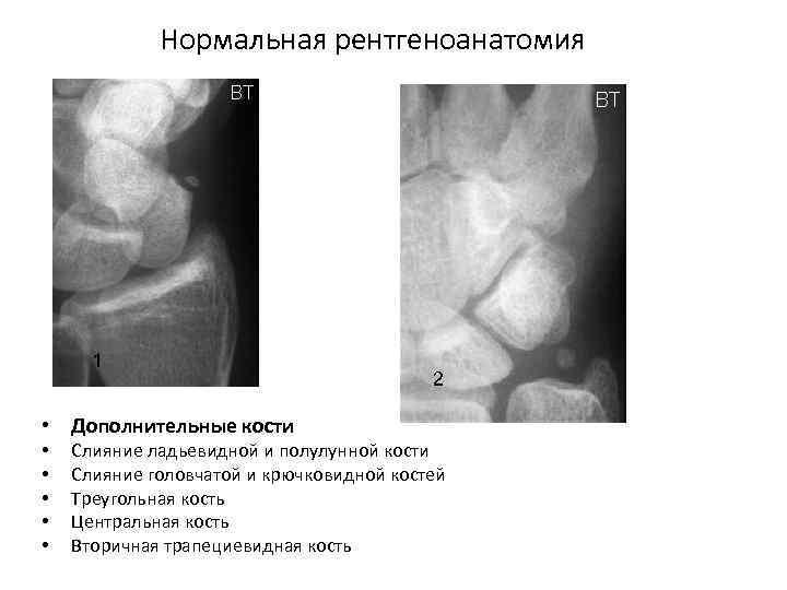 Нормальная рентгеноанатомия 1 • Дополнительные кости • • • 2 Слияние ладьевидной и полулунной