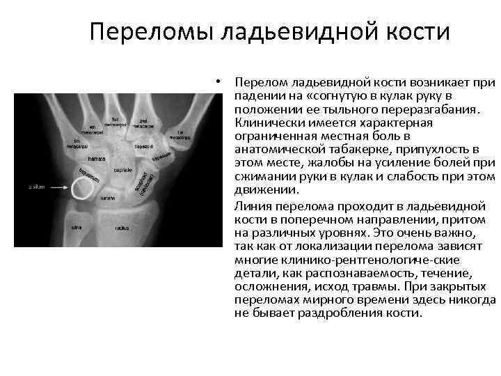 Переломы ладьевидной кости • Перелом ладьевидной кости возникает при падении на «согнутую в кулак