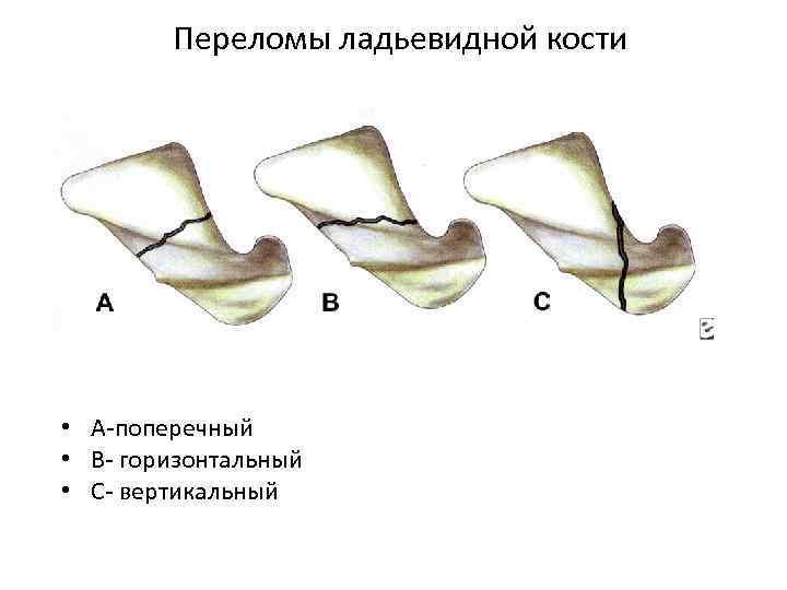 Переломы ладьевидной кости • А поперечный • В горизонтальный • С вертикальный
