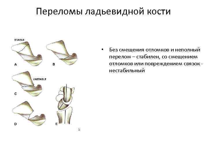 Переломы ладьевидной кости • Без смещения отломков и неполный перелом – стабилен, со смещением