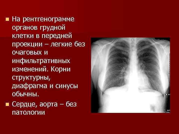 Органы грудной клетки без патологии