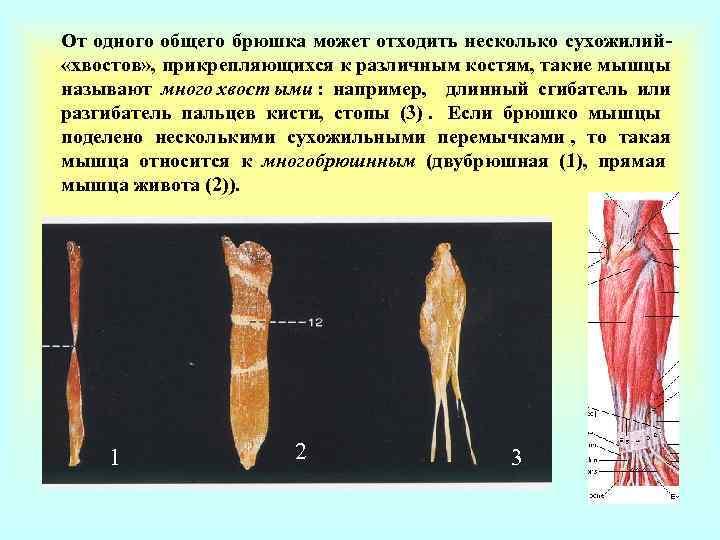От одного общего брюшка может отходить несколько сухожилий- «хвостов» , прикрепляющихся к различным костям,