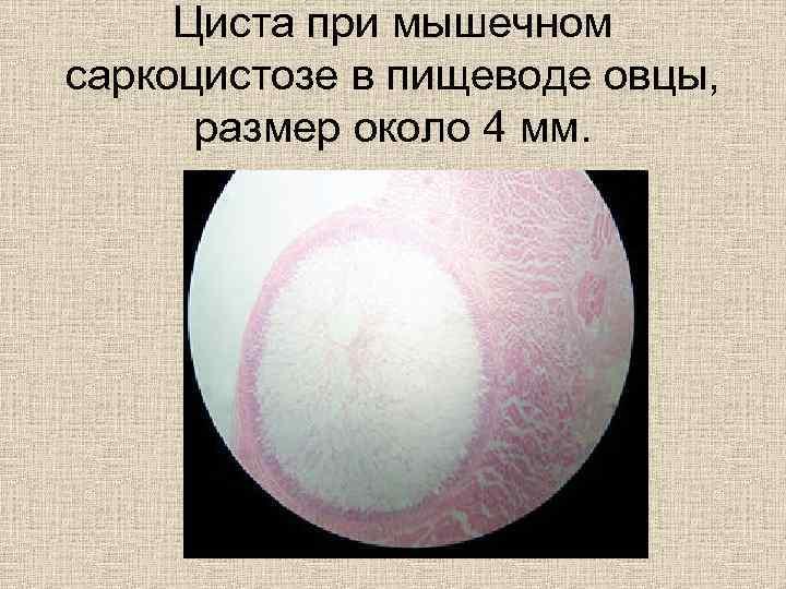 Циста при мышечном саркоцистозе в пищеводе овцы,   размер около 4 мм.