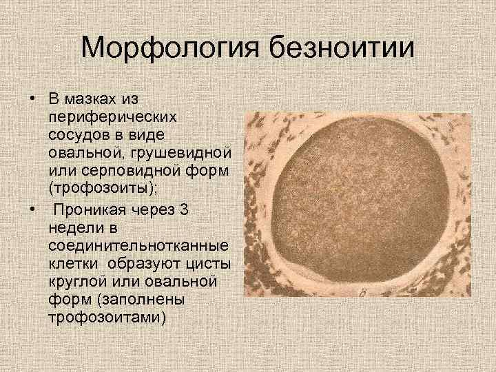 Морфология безноитии • В мазках из  периферических  сосудов в виде