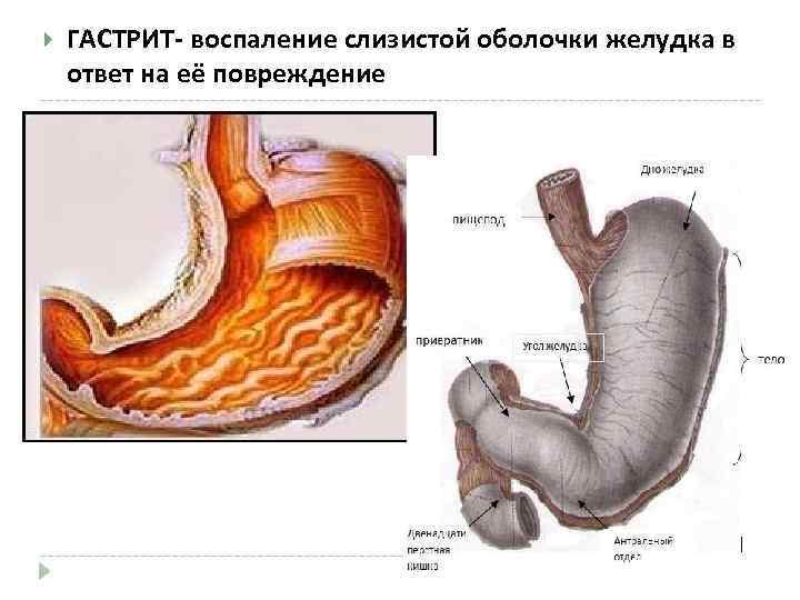 ГАСТРИТ- воспаление слизистой оболочки желудка в ответ на её повреждение