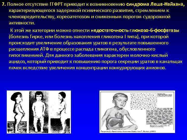 7. Полное отсутствие ГГФРТ приводит к возникновению синдрома Леша-Найхана,   характеризующегося задержкой психического