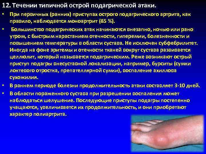 12. Tечении типичной острой подагрической атаки.  • При первичных (ранних) приступах острого подагрического
