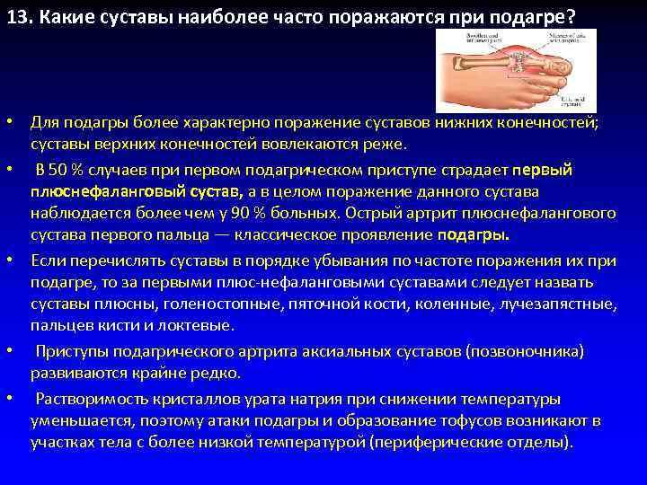 13. Какие суставы наиболее часто поражаются при подагре?  • Для подагры более характерно