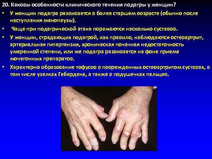 20. Каковы особенности клинического течения подагры у женщин?  • У женщин подагра развивается