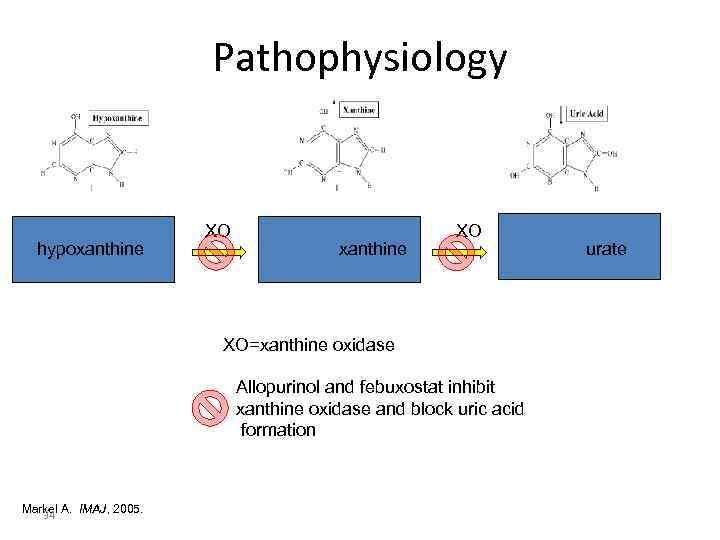 Pathophysiology      XO  hypoxanthine