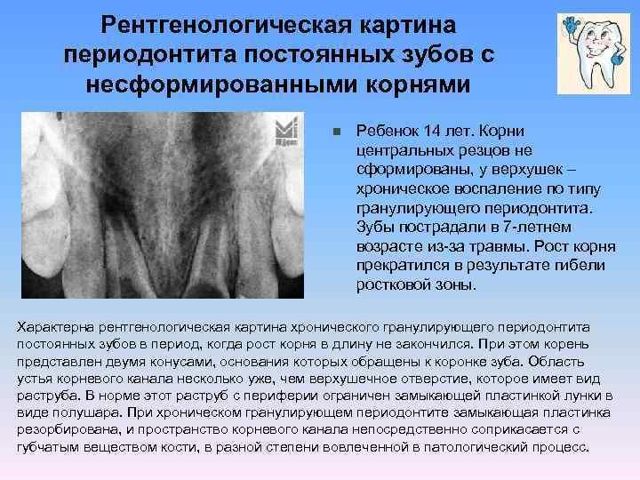 Хронический периодонтит постоянного несформированного зубу