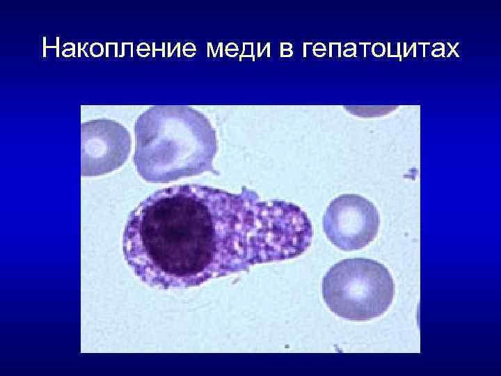 Накопление меди в гепатоцитах