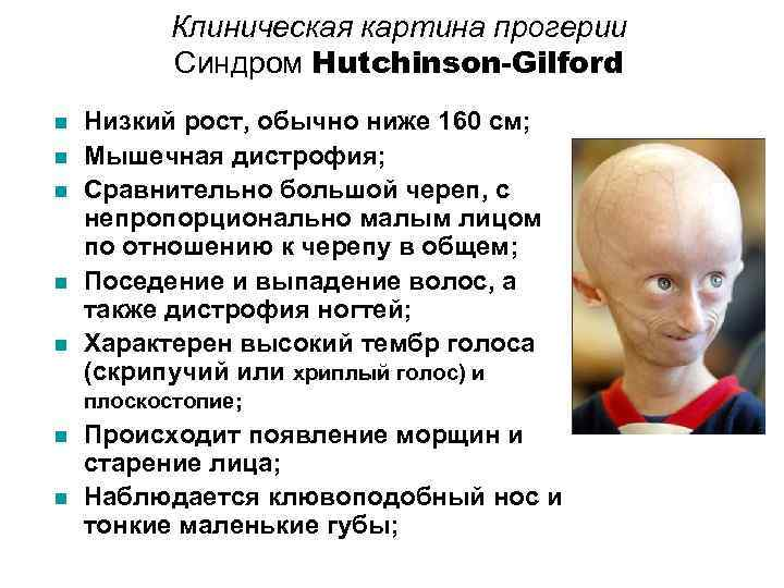 an informative article on progeria or hutchinson gilford syndrome Hutchinson-gilford progeria syndrome is a genetic condition characterized by the dramatic, rapid appearance of aging beginning in childhood affected children typically look normal at birth and in early infancy, but then grow more slowly than other child.