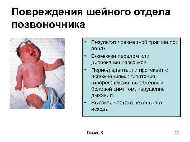 Травмы позвоночника при родах у женщин