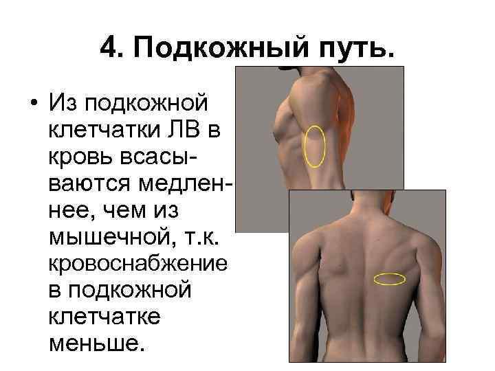 4. Подкожный путь. • Из подкожной клетчатки ЛВ в кровь всасываются медленнее, чем из