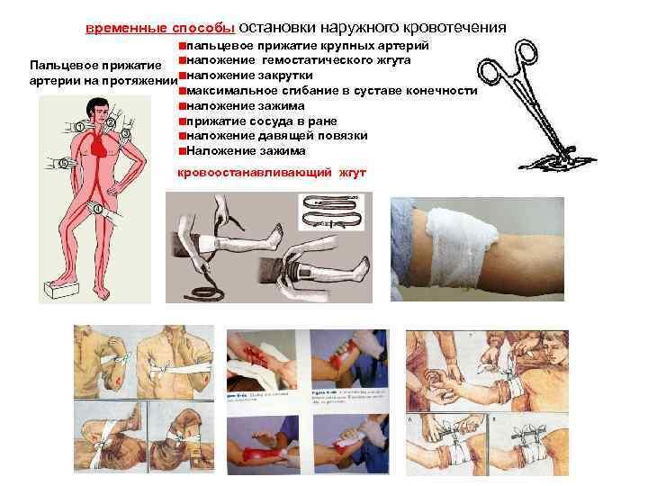 Остановка кровотечения из артерии в картинке