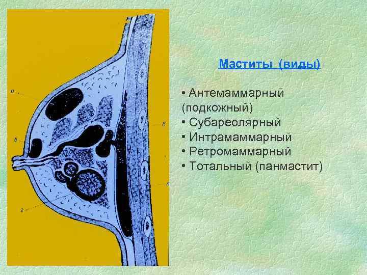 Маститы (виды) • Антемаммарный (подкожный) • Субареолярный • Интрамаммарный • Ретромаммарный • Тотальный (панмастит)