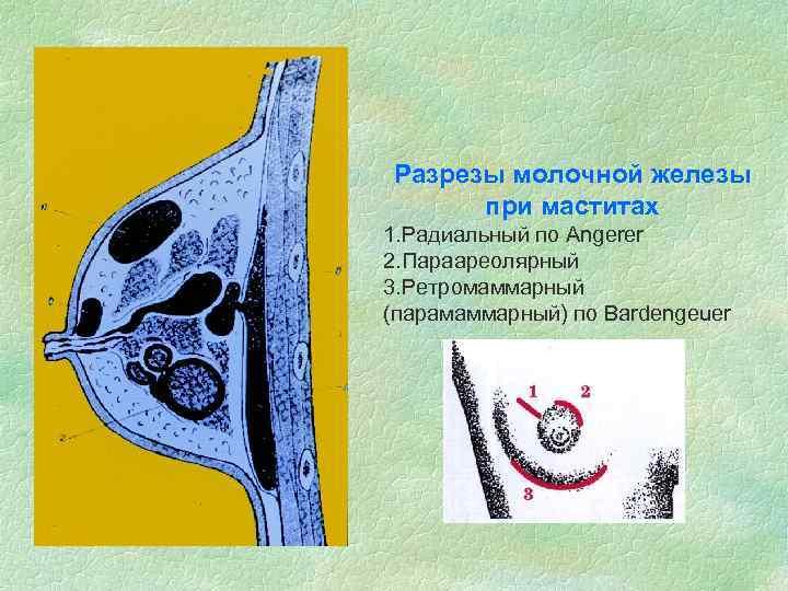 Разрезы молочной железы при маститах 1. Радиальный по Angerer 2. Параареолярный 3. Ретромаммарный (парамаммарный)